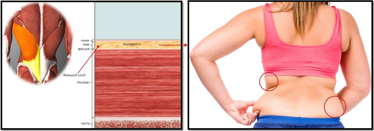 Жир на спине: соотношение мышцы-жир