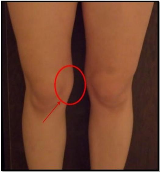 убрать жир с коленей упражнения