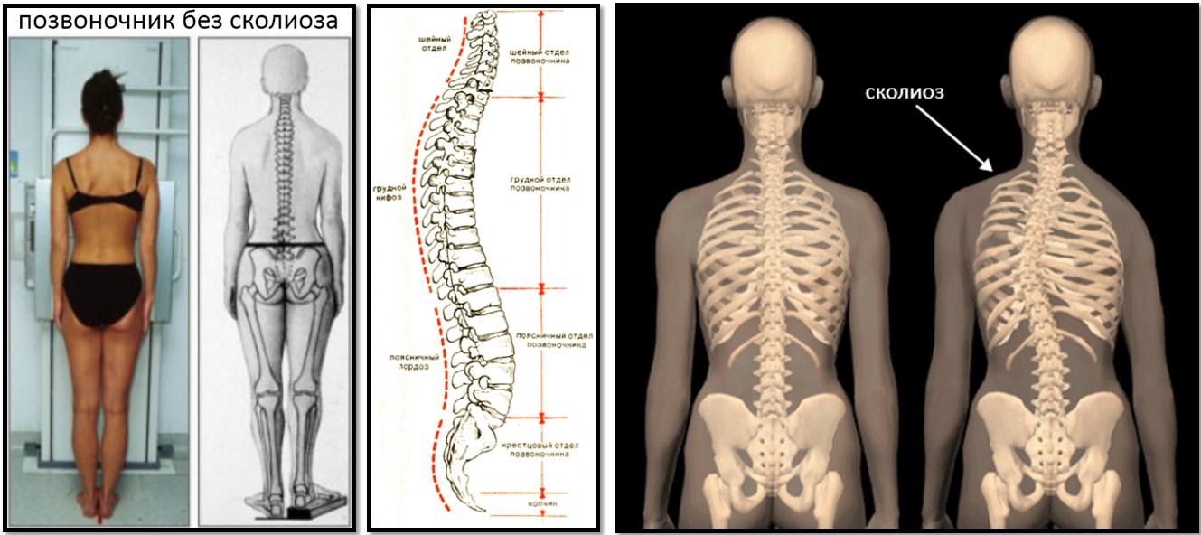 У 3 месячного ребенка кривая спина