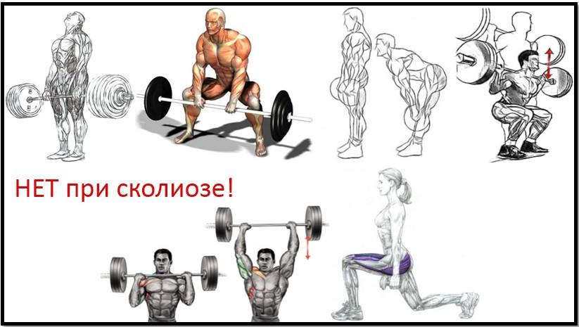 Кифоз упражнения в тренажерном зале для