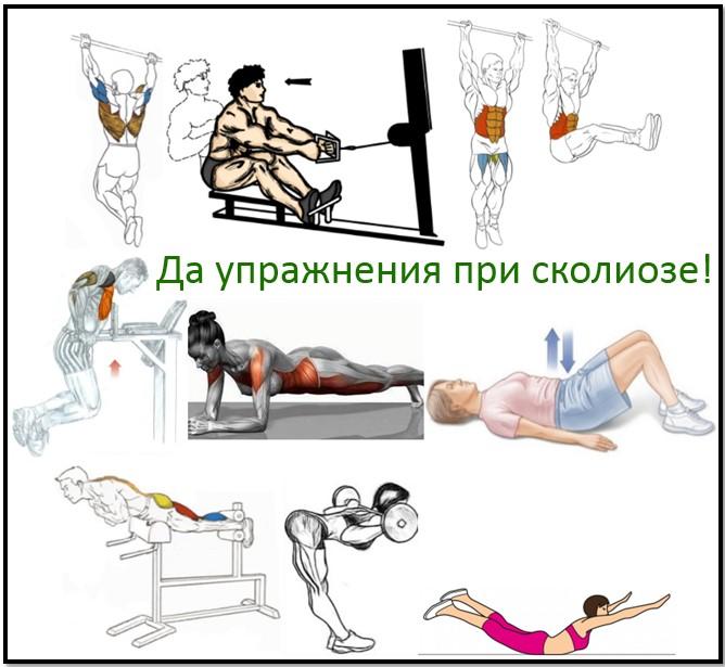 Упражнений для сколиоза спины в тренажерном зале