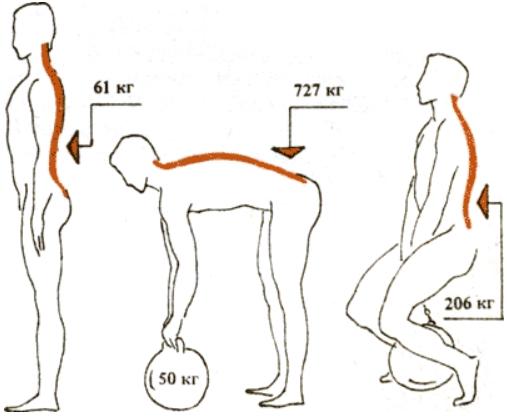 Грыжи и бодибилдинг. Нагрузки на позвоночник при работе с весами.