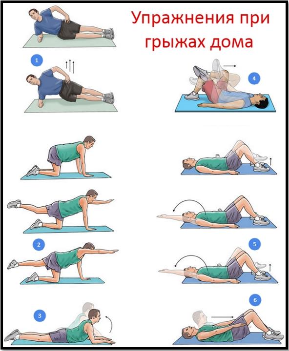 Грыжи и бодибилдинг. Упражнения в домашних условиях.