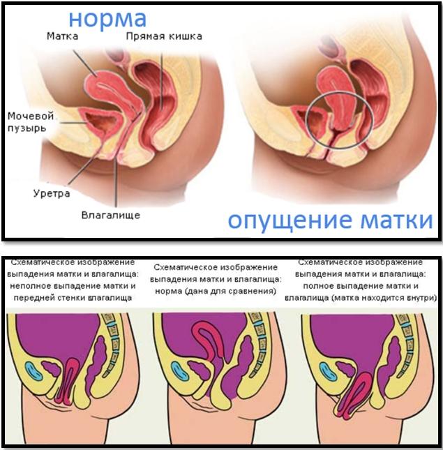 vliyaet-li-vipadenie-vlagalisha-na-menstruatsiyu